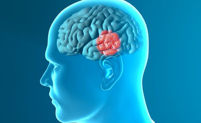 A doença de Parkinson, uma droga para diabetes poderia bloqueálo