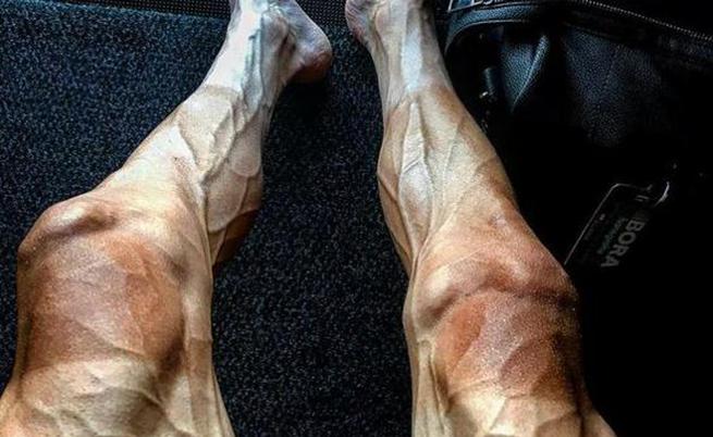 A foto de Pawel Poljanski após o Tour de France: o que aconteceu com suas pernas?