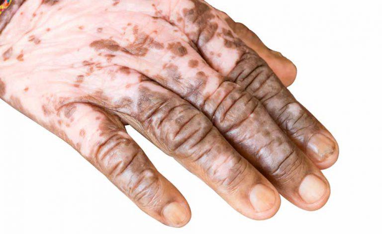 Albinismo e vitiligo: as características das doenças