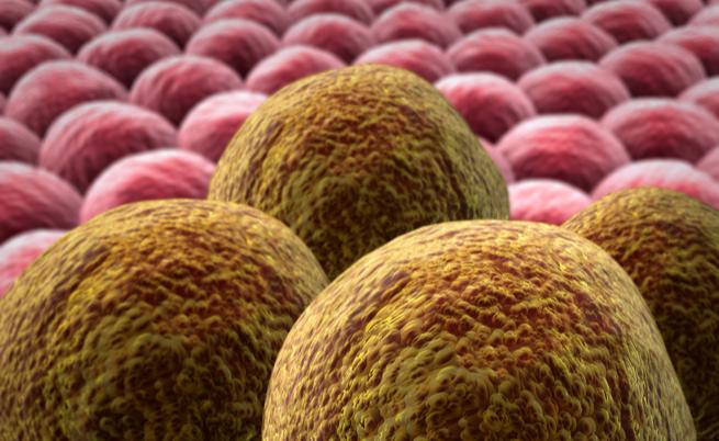 Como um câncer: o que você não sabe sobre neoplasias