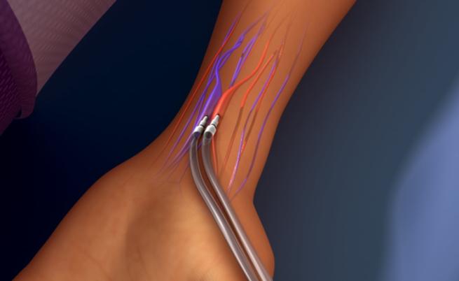 Complicações de fístula artério venosa para hemodiálise