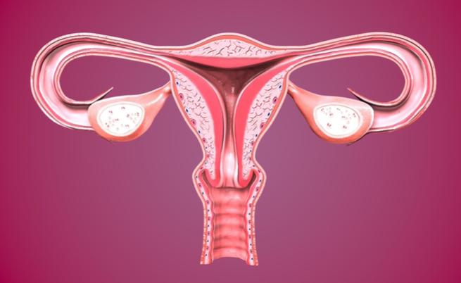 Mioma do útero, que é o mais em risco?