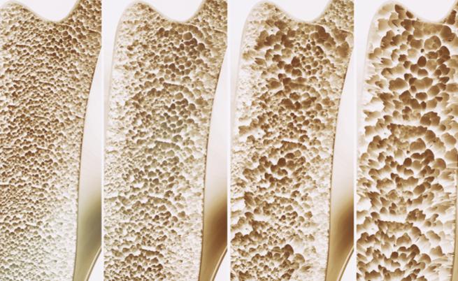 Osteoporose: reconhecendoa, com a antecedência suficiente para curálo, mesmo em férias!