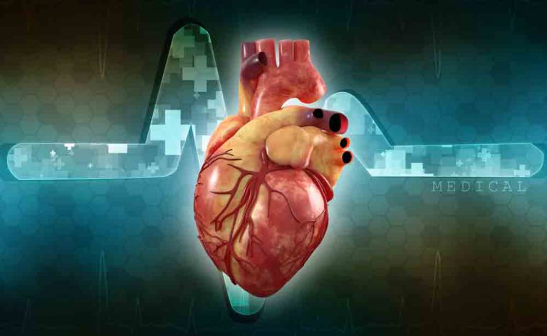 Sopro cardíaco: é possível curálo?